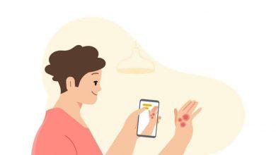 صورة الذكاء الاصطناعي من جوجل يحدد أمراض الجلد الشائعة