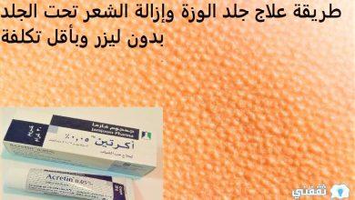 صورة طريقة علاج جلد الوزة وإزالة الشعر تحت الجلد بدون ليزر وبأقل تكلفة