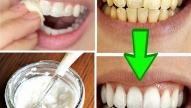 صورة تبييض الأسنان في 5 دقائق والتخلص من أصفرار الأسنان بوصفات طبيعيا 100٪ فعال