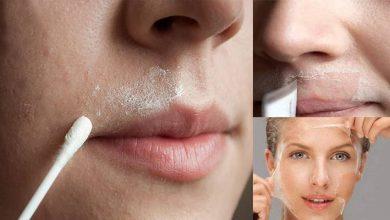 صورة طريقة إزالة شعر الوجه بمكونات بسيطة في المنزل واختفائه لشهور طويلة في دقائق معدودة